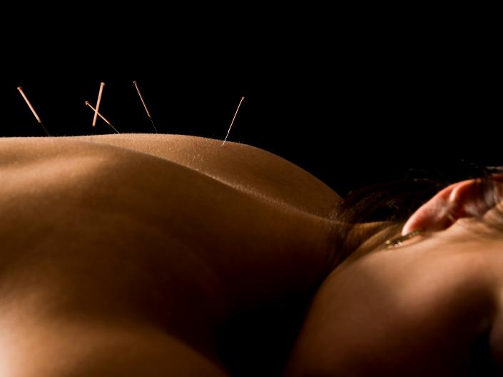 Image of woman lying down with acupuncture needs in her back