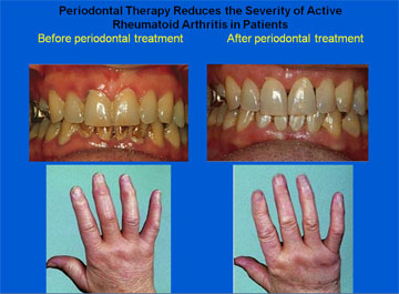 Periodontal Therapy Reduces the Severity of Active Rheumatoid Arthritis in Patients Before periodontal treatment After periodontal treatment
