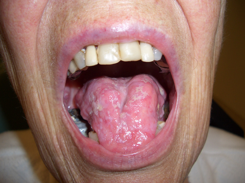 Patient's mouth with pseudomembranous candidiasis