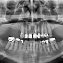 Xray of teeth that has dental work done on them.
