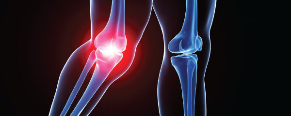 Image of a knee x-ray