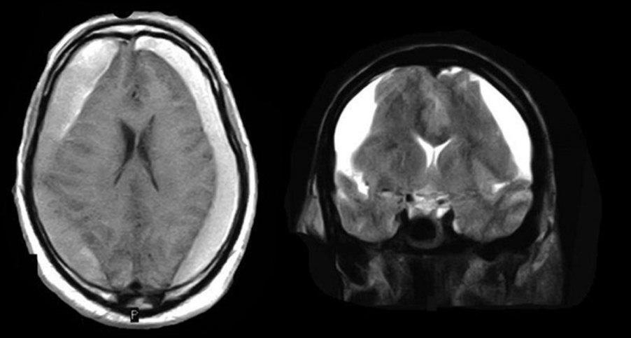 Subdural hematoma radiology