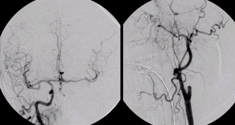 Internal Carotid Artery9