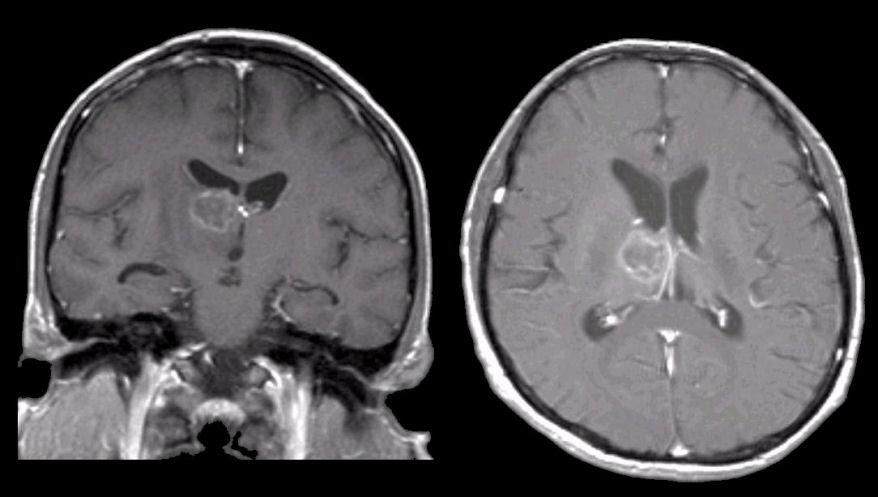 toxoplasmosis brain mri