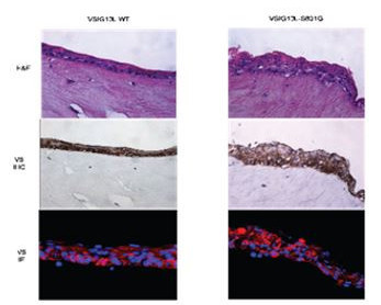 three dimensional OTC of EPC-2 cells shows normal morphology in cells transfected with wild type VSIG10L (left) versus mutant VSIG10L (right).