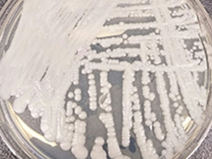 Clear petri dish with white sample of candida auris