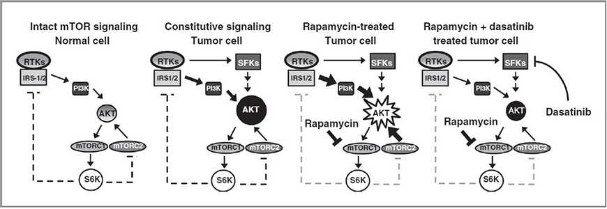 Illustration of the AKT/mTOR pathway under Dasatinib or Rapamycin treatments.  1) Intact mTOR signaling Normal cell 2) Constitutive signaling Tumor Cell 3) Rapamycin-treated Tumor cell 4) Rapamycin + dasatinib treated tumor cell