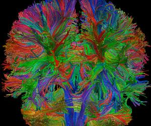 Colorful functional neurosurgical image