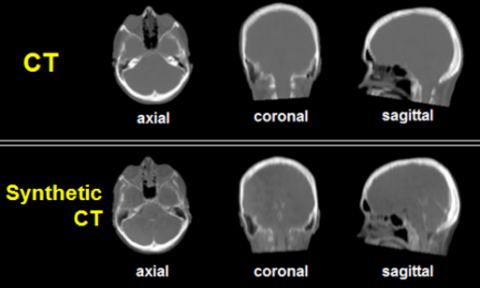 MRI images of a someones head.