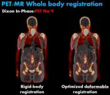 PET/MR whole body registration