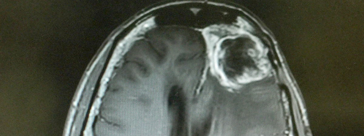Top half of a black and white MRI scan showing a glioma in the top left corner of the brain