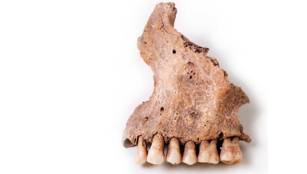 Dentists Dig for Clues into Human Evolution