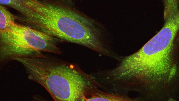 human amniotic membrane mesenchymal stem cells
